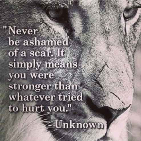 Strength Quotes Never Be Ashamed Of a Scar It Simply Means You Were Stronger Than Whatever Tried To Hurt You